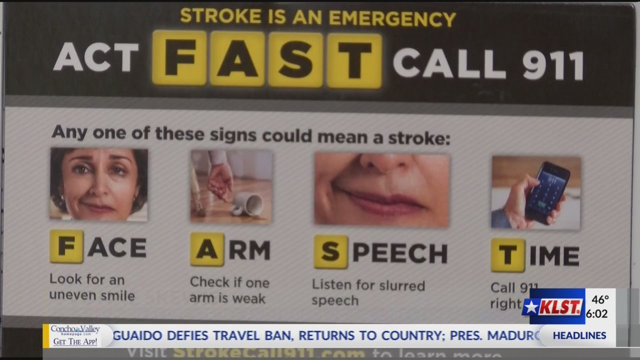 Signs and Symptoms of a Stroke .